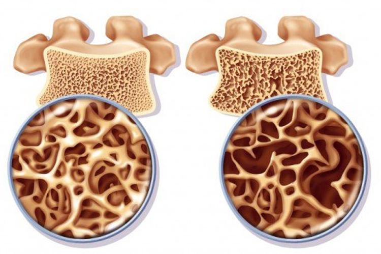 Read more about the article Osteonecrose