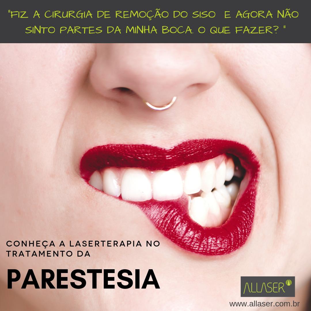 Parestesia – tratamento com Laserterapia