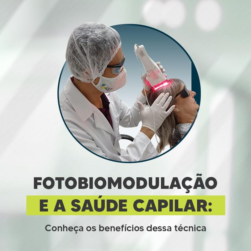 Read more about the article Fotobiomodulação e a Saúde Capilar: Conheça os benefícios dessa técnica