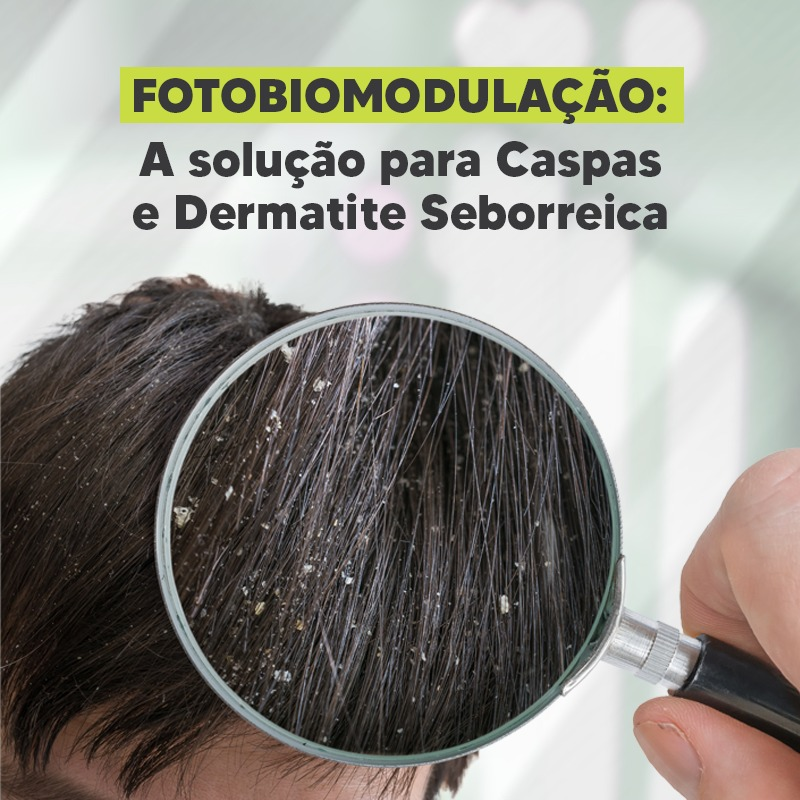 You are currently viewing Fotobiomodulação: A solução para Caspas e Dermatite Seborreica